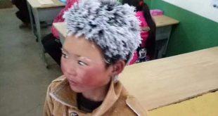 Πάνω από 280.000 ευρώ δωρεές για το «παγωμένο αγόρι»