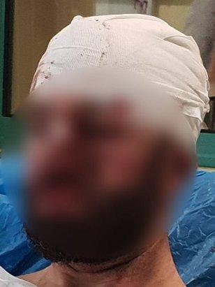 Συνελήφθη ο αστυνομικός που ξυλοκοπήθηκε από Πακιστανούς!