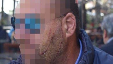 Πώς περιγράφει τη στιγμή της επίθεσης ο οδηγός λεωφορείου στη Λάρισα