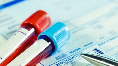 Απεργία των Μικροβιολογικών εργαστηρίων στα Τρίκαλα