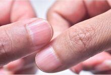 Photo of Κάθετες και οριζόντιες ραβδώσεις στα νύχια -Τι αποκαλύπτουν για την υγεία