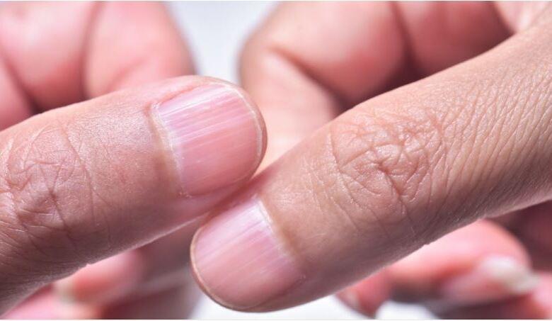 Κάθετες και οριζόντιες ραβδώσεις στα νύχια